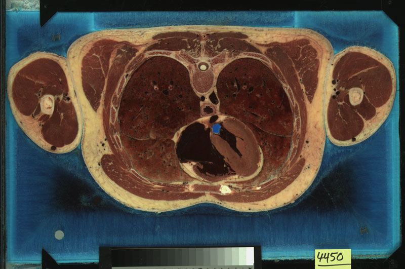 The Visible Human Project, a slice from the Visible Male. Courtesy of the US National Library of Medicine