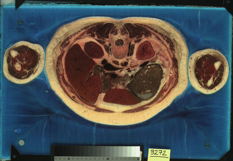 The Visible Human Project, A slice from the Visible Female. Courtesy of the US National Library of Medicine