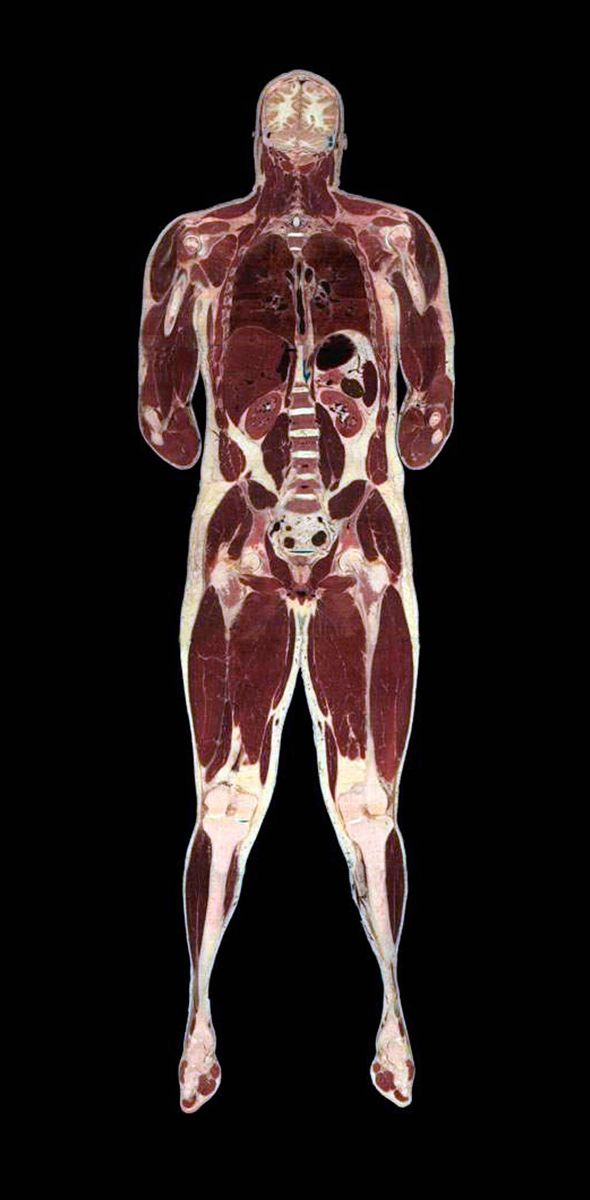 The Visual Human Project, composite image of human anatomy. Photo: Cultura Creative/Alamy