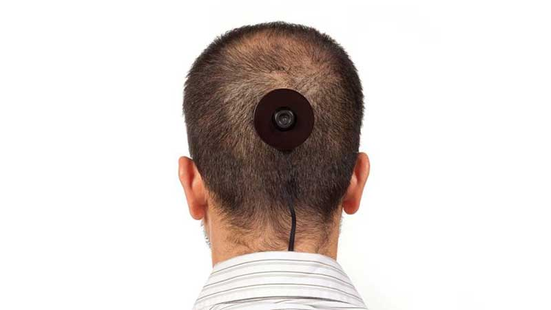 Waffa Bilal, The 3rdi, 2010, camera surgically implanted in the back of the  artist's head. Photo: Brad Farwell